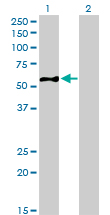 EIF5 Antibody - Western blot of EIF5 expression in transfected 293T cell line by EIF5 monoclonal antibody (M01), clone 2E6-4C12.