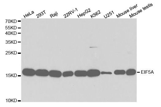 Western blot analysis of extracts of various cell lines, using EIF5A antibody.