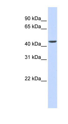 ELAC1 antibody LS-C101912 Western blot of Fetal Heart lysate.  This image was taken for the unconjugated form of this product. Other forms have not been tested.