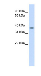 ELK3 / NET antibody Western blot of Fetal Liver lysate. This image was taken for the unconjugated form of this product. Other forms have not been tested.