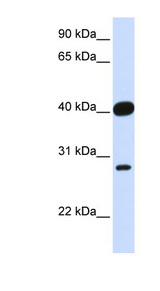 ELK3 / NET antibody Western blot of Fetal Heart lysate. This image was taken for the unconjugated form of this product. Other forms have not been tested.