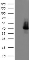 HEK293T cells were transfected with the pCMV6-ENTRY control (Left lane) or pCMV6-ENTRY ELK3 (Right lane) cDNA for 48 hrs and lysed. Equivalent amounts of cell lysates (5 ug per lane) were separated by SDS-PAGE and immunoblotted with anti-ELK3.