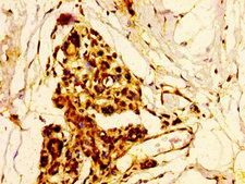 ELK3 / NET Antibody - Immunohistochemistry image at a dilution of 1:500 and staining in paraffin-embedded human breast cancer performed on a Leica BondTM system. After dewaxing and hydration, antigen retrieval was mediated by high pressure in a citrate buffer (pH 6.0) . Section was blocked with 10% normal goat serum 30min at RT. Then primary antibody (1% BSA) was incubated at 4 °C overnight. The primary is detected by a biotinylated secondary antibody and visualized using an HRP conjugated SP system.