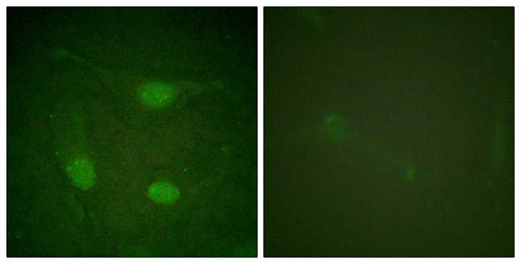 Immunofluorescence analysis of HeLa cells, using Elk3 (Phospho-Ser357) Antibody. The picture on the right is blocked with the phospho peptide.