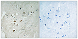 Immunohistochemistry analysis of paraffin-embedded human brain, using Elk3 (Phospho-Ser357) Antibody. The picture on the right is blocked with the phospho peptide.