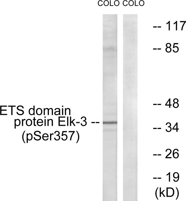 Western blot analysis of lysates from COLO205 cells treated with serum 20% 15', using Elk3 (Phospho-Ser357) Antibody. The lane on the right is blocked with the phospho peptide.