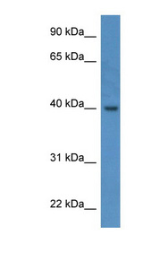 ELMOD3 / RBED1 antibody LS-C135792 Western blot of Fetal Lung lysate.  This image was taken for the unconjugated form of this product. Other forms have not been tested.