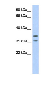 C17orf81 antibody LS-C102551 Western blot of Fetal Pancreas lysate.  This image was taken for the unconjugated form of this product. Other forms have not been tested.