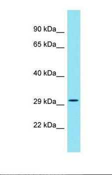 EML5 Antibody - Western blot of Human HT1080. EML5 antibody dilution 1.0 ug/ml.  This image was taken for the unconjugated form of this product. Other forms have not been tested.