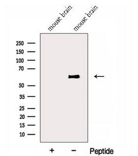 ENPP4 Antibody - Western blot analysis of extracts of mouse brain tissue using ENPP4 antibody. The lane on the left was treated with blocking peptide.