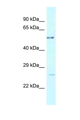 ENTPD3 antibody LS-C145825 Western blot of Fetal Lung lysate. Antibody concentration 1 ug/ml.  This image was taken for the unconjugated form of this product. Other forms have not been tested.