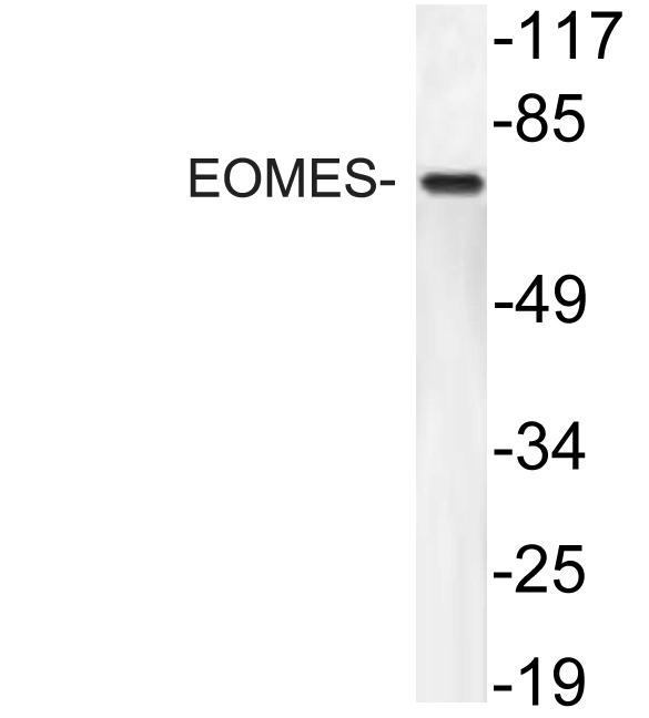 Western blot of EOMES antibody in extracts from HT29 cells.
