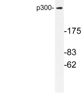 Western blot of p300 (V6) pAb in extracts from MDA-MB-435 cells.