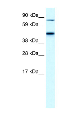EPB42 / Pallidin antibody Western blot of Fetal liver lysate. This image was taken for the unconjugated form of this product. Other forms have not been tested.