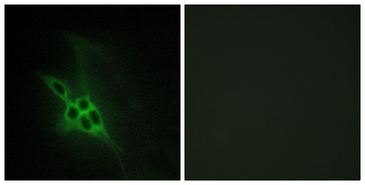 EPH Receptor B1+B2+B3 Antibody - Immunofluorescence analysis of NIH/3T3 cells, using EPHB1/2/3 Antibody. The picture on the right is blocked with the synthesized peptide.