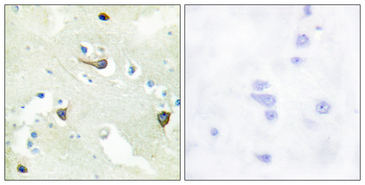 EPH Receptor B1+B2+B3 Antibody - Immunohistochemistry analysis of paraffin-embedded human brain tissue, using EPHB1/2/3 Antibody. The picture on the right is blocked with the synthesized peptide.