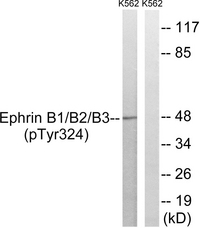 EPH Receptor B1+B2+B3 Antibody - Western blot analysis of lysates from K562 cells treated with serum 20% 15', using Ephrin B1/B2/B3 (Phospho-Tyr324) Antibody. The lane on the right is blocked with the phospho peptide.