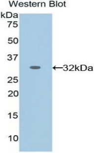 Western blot of recombinant EPHA1 / EPH Receptor A1.  This image was taken for the unconjugated form of this product. Other forms have not been tested.