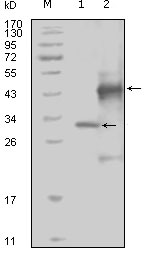 Western blot using EphA4 mouse monoclonal antibody against truncated Trx-EphA4 recombinant protein (1) and truncated GST-EphA4(aa777-986) recombinant protein (2).