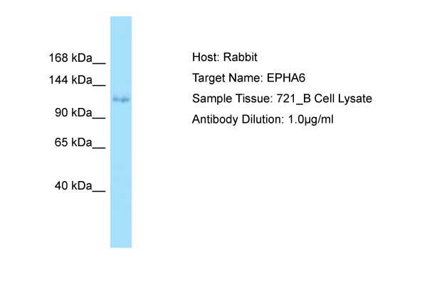 EPHA6 / EPH Receptor A6 Antibody -  This image was taken for the unconjugated form of this product. Other forms have not been tested.
