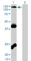 Western blot of EPHB3 expression in transfected 293T cell line by EPHB3 monoclonal antibody (M01), clone 1B3.