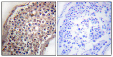 Ephrin B1+B2 Antibody - Immunohistochemistry analysis of paraffin-embedded human testis tissue, using EFNB1/2 Antibody. The picture on the right is blocked with the synthesized peptide.