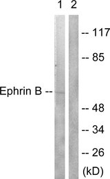 Ephrin B1+B2 Antibody - Western blot analysis of lysates from 293 cells, treated with EGF 200ng/ml 5', using EFNB1/2 Antibody. The lane on the right is blocked with the synthesized peptide.