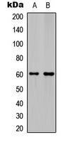 Ephrin B1+B2 Antibody - Western blot analysis of Ephrin B1/2 expression in HeLa (A); mouse hippocampus (B) whole cell lysates.