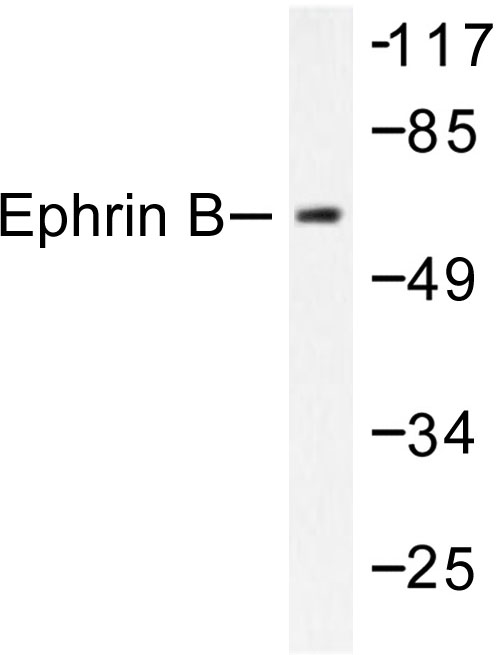 Ephrin B1+B2 Antibody - Western blot of Ephrin-B (Q324) pAb in extracts from 293 cells treated with EGF 200ng/ml 5' or 293 cells treated with TNF-a 20ng/ml 30'.