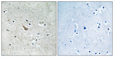 Ephrin B1+B2 Antibody - Immunohistochemistry analysis of paraffin-embedded human brain, using Ephrin B1/B2 (Phospho-Tyr329) Antibody. The picture on the right is blocked with the phospho peptide.