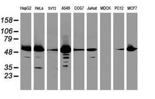 Western blot of extracts (35 ug) from 9 different cell lines by using anti-EPHX1 monoclonal antibody (HepG2: human; HeLa: human; SVT2: mouse; A549: human; COS7: monkey; Jurkat: human; MDCK: canine; PC12: rat; MCF7: human).