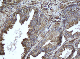 IHC of paraffin-embedded Human prostate tissue using anti-EPHX1 mouse monoclonal antibody.