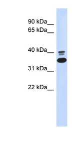 EPHX4 antibody LS-B5866 Western blot of 293T cell lysate.  This image was taken for the unconjugated form of this product. Other forms have not been tested.
