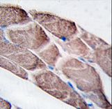 EPM2A / Laforin Antibody - Formalin-fixed and paraffin-embedded human skeletal muscle tissue reacted with EPM2A antibody , which was peroxidase-conjugated to the secondary antibody, followed by DAB staining. This data demonstrates the use of this antibody for immunohistochemistry; clinical relevance has not been evaluated.