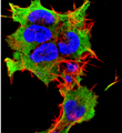 Detection of Laforin in nueroblastoma cell line SK-N-BE with Laforin Monoclonal Antibody at 10ug/ml: DAPI (blue) nuclear stain, Texas Red F actin stain, ATTO 488 (green) Laforin stain.