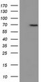 HEK293T cells were transfected with the pCMV6-ENTRY control (Left lane) or pCMV6-ENTRY EPM2AIP1 (Right lane) cDNA for 48 hrs and lysed. Equivalent amounts of cell lysates (5 ug per lane) were separated by SDS-PAGE and immunoblotted with anti-EPM2AIP1.