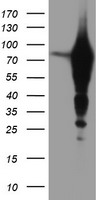 HEK293T cells were transfected with the pCMV6-ENTRY control (Left lane) or pCMV6-ENTRY EPN2 (Right lane) cDNA for 48 hrs and lysed. Equivalent amounts of cell lysates (5 ug per lane) were separated by SDS-PAGE and immunoblotted with anti-EPN2.