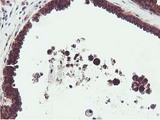 IHC of paraffin-embedded Human breast tissue using anti-EPN2 mouse monoclonal antibody.