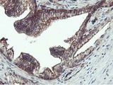 IHC of paraffin-embedded Carcinoma of Human prostate tissue using anti-EPN2 mouse monoclonal antibody.