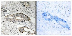 IHC of paraffin-embedded human colon carcinoma tissue, using EPN3 Antibody. The picture on the right is treated with the synthesized peptide.