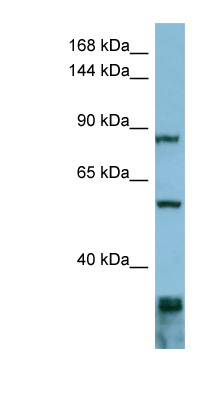 EPS8 antibody LS-C107741 Western blot of ACHN lysate.  This image was taken for the unconjugated form of this product. Other forms have not been tested.