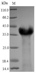 LMP1 Protein - (Tris-Glycine gel) Discontinuous SDS-PAGE (reduced) with 5% enrichment gel and 15% separation gel.