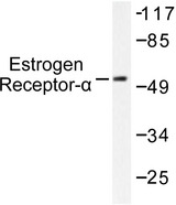 Western blot of Estrogen Receptor- (G161) pAb in extracts from MCF7 cells treated with EGF.