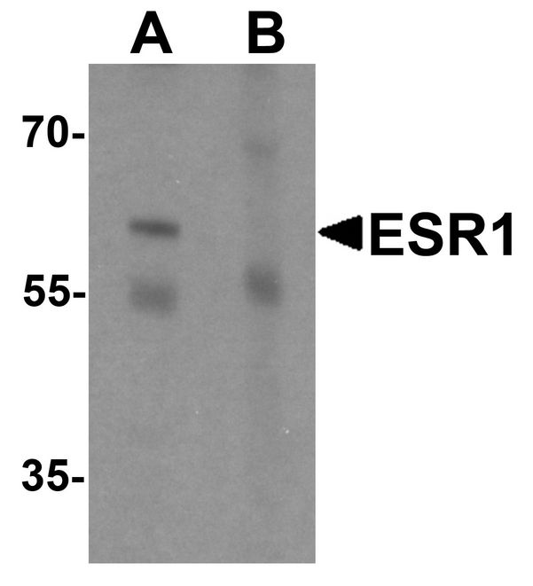 Western blot analysis of ESR1 in rat brain tissue lysate with ESR1 antibody at 1 ug/ml in (A) the absence and (B) the presence of blocking peptide.