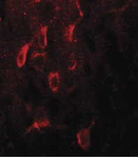 Immunofluorescence of ESR1 in rat brain tissue with ESR1 antibody at 20 ug/ml.