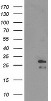 HEK293T cells were transfected with the pCMV6-ENTRY control (Left lane) or pCMV6-ENTRY ERAS (Right lane) cDNA for 48 hrs and lysed. Equivalent amounts of cell lysates (5 ug per lane) were separated by SDS-PAGE and immunoblotted with anti-ERAS.
