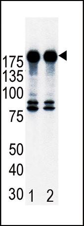 Western blot of ErbB2 (arrow) in T47D cell lysates, either non-induced (Lane 1) or induced with HRG (Lane 2).