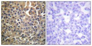 IHC of paraffin-embedded human breast carcinoma, using HER4 (Phospho-Tyr1284) Antibody. The sample on the right was incubated with synthetic peptide.
