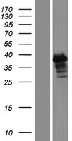 ERCC1 Protein - Western validation with an anti-DDK antibody * L: Control HEK293 lysate R: Over-expression lysate