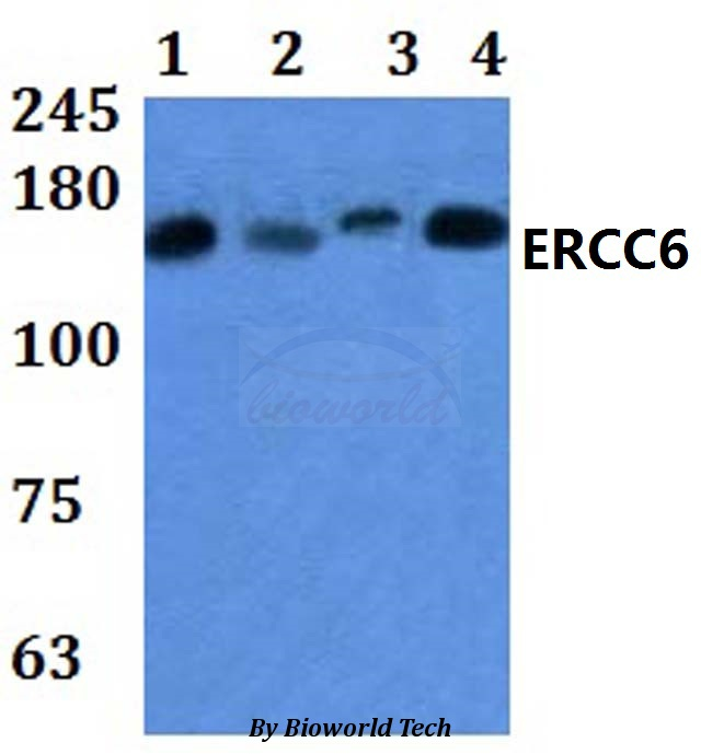 Western blot of ERCC6 antibody at 1:500 dilution. Lane 1: HEK293T whole cell lysate. Lane 2: Raw264.7 whole cell lysate. Lane 3: H9C2 whole cell lysate. Lane 4: HELA whole cell ly.